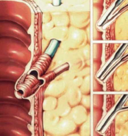 Усиление тонуса сфинктера Одди способствует развитию панкреонекроза.