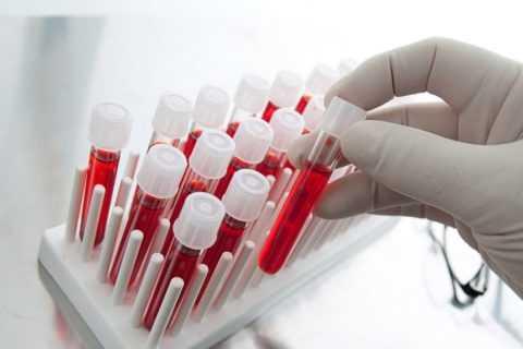 В различных лабораториях нормативы показателей могут незначительно различаться