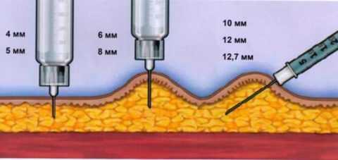 В зависимости от длины иглы, инсулин вводится под кожу под прямым углом или под углом 45 градусов.