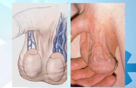 Варикозное расширение вен яичка и семенного канатика