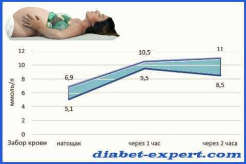 Верхняя и нижняя граница результатов ГТТ для подтверждения гестационного диабета