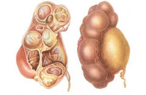 Воспаление семенных пузырьков - везикулит