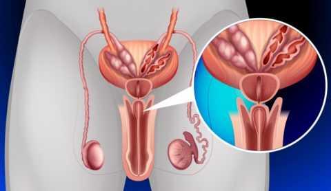 Воспалительный процесс при инфекционном поражении уретры у мужчин