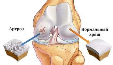 Восстановление хрящевой ткани