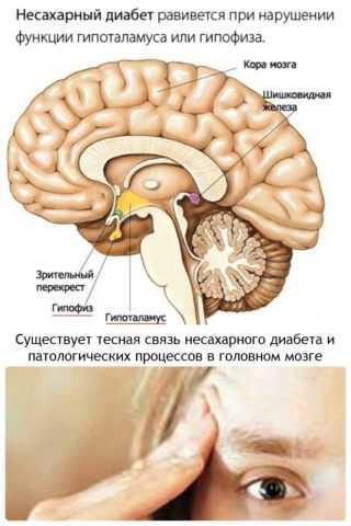 Возникновение патологии связано с недостаточной выработкой гипоталамусом гормона вазопрессина