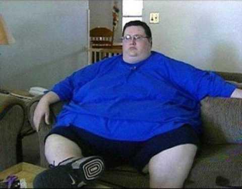 Высокая степень ожирения у мужчин при СД