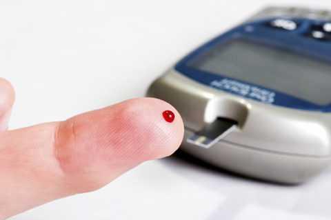 Заключительный этап (развивается панкреатический сахарный диабет).