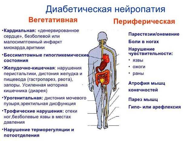 Виды полинейропатии