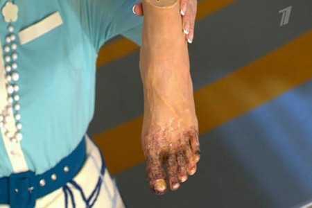 Человек держит пластмассовую ногу