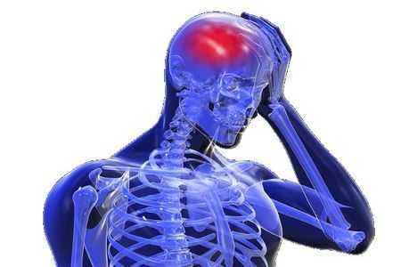 схема локализации боли в голове