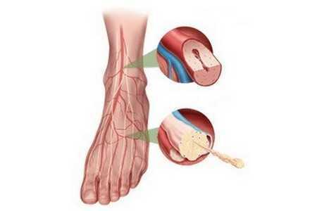 Нога с болезнью