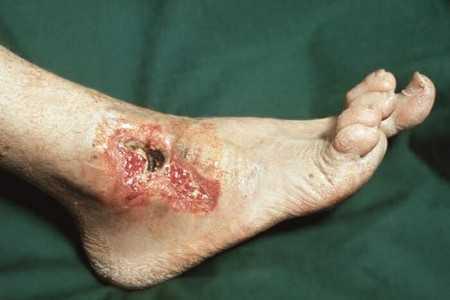 Трофическая язва на ноге