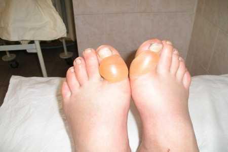 Ноги, диабетический пузырь