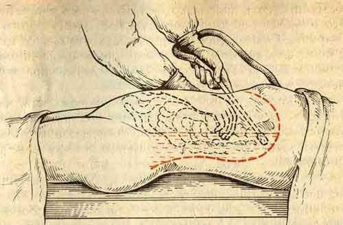Промывание брюшной полости