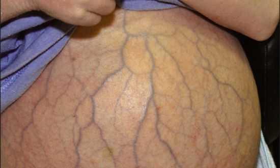 Водянка при циррозе