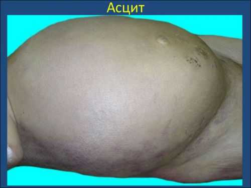 Асцит