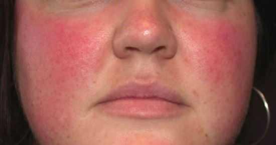 Красное лицо