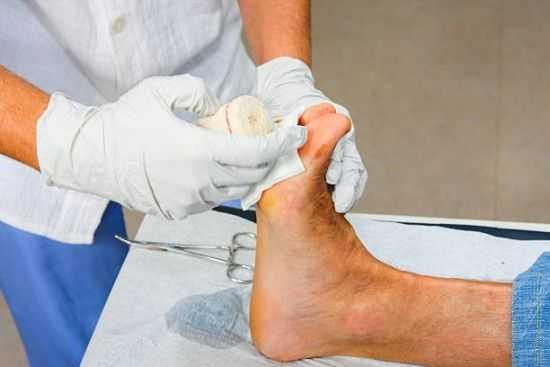 Обработка диабетической стопы