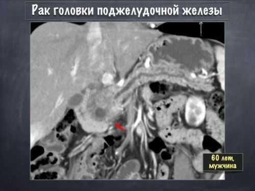 Рак поджелудочной железы на МРТ