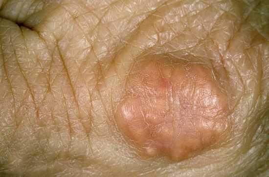 Ксантоматоз