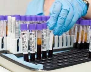 Биохимический анализ на глюкозу крови