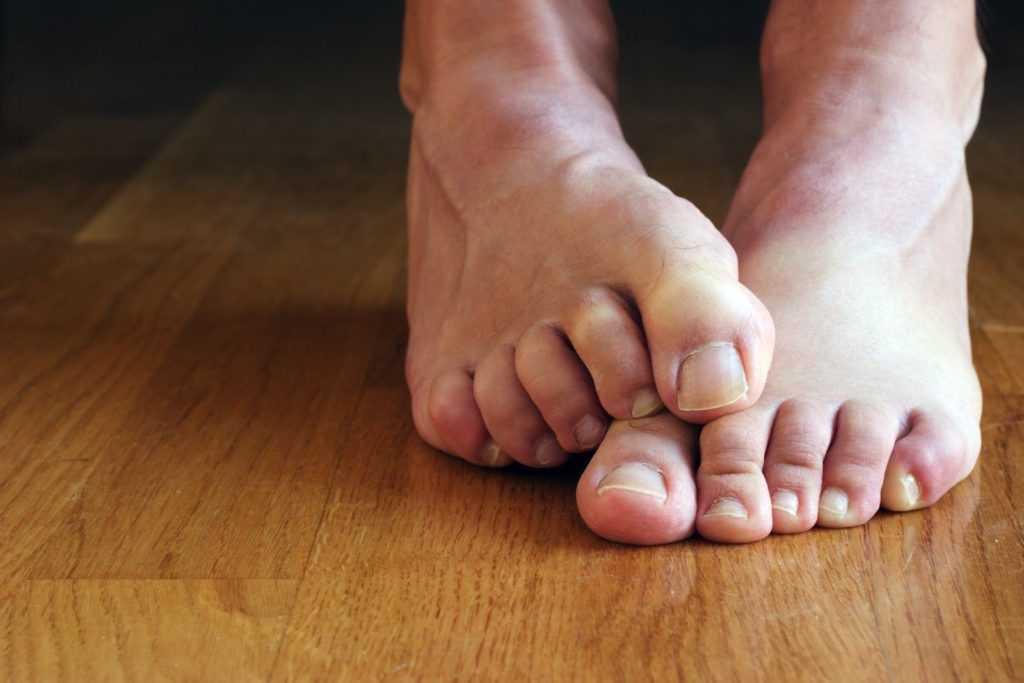 Классификация поражений ног при диабете