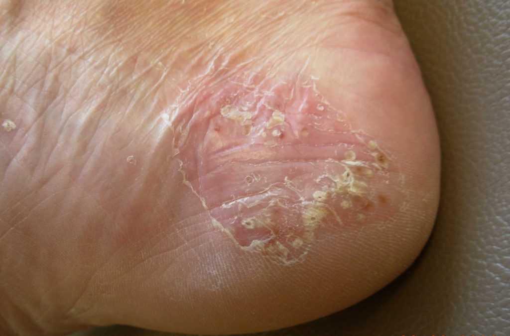 Гиперкератоз и трещины