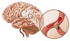 Ишемический инсульт при диабете