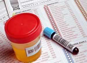 Какие анализы нужны при сахарном диабете