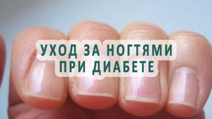 Лечение ногтей у диабетика