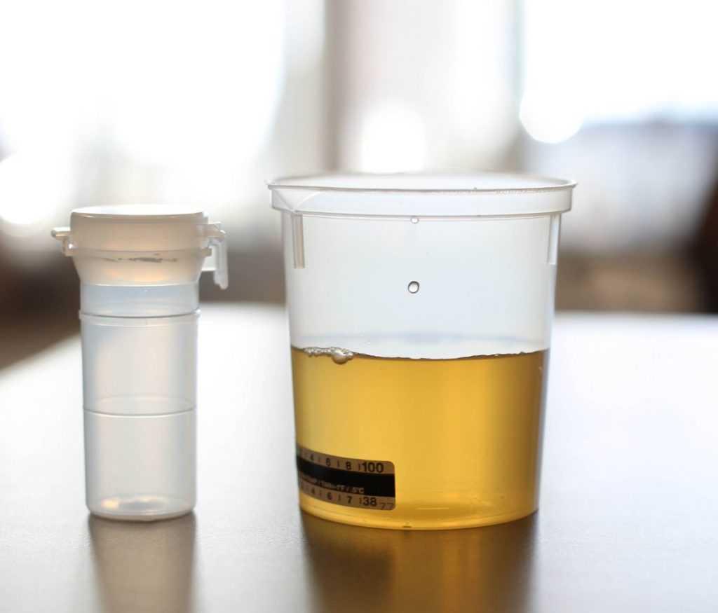 Определение уровня глюкозы в моче
