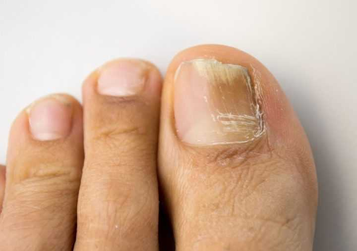 Потемнение ногтя