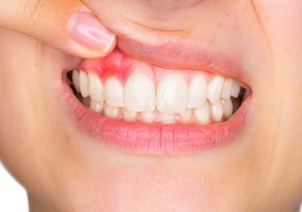 Заболевание полости рта при диабете