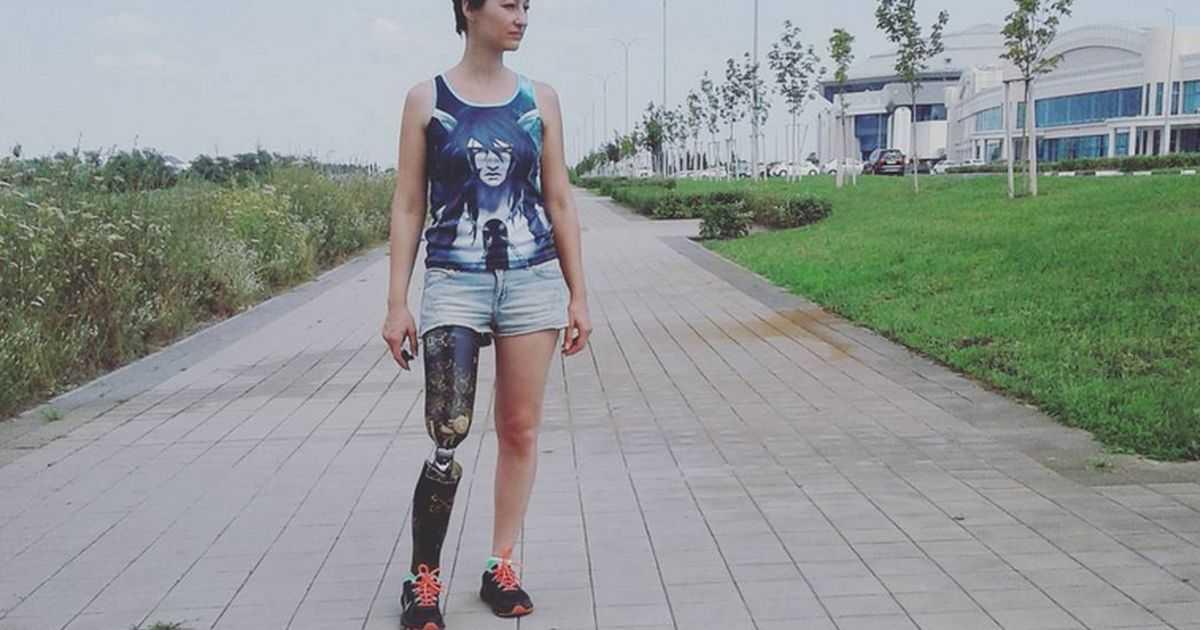 Ампутация ноги выше колена