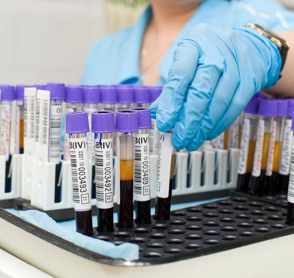 анализ биохимии крови