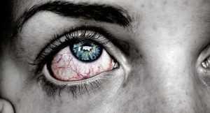 Диабетическая ретинопатия при сахарном диабете