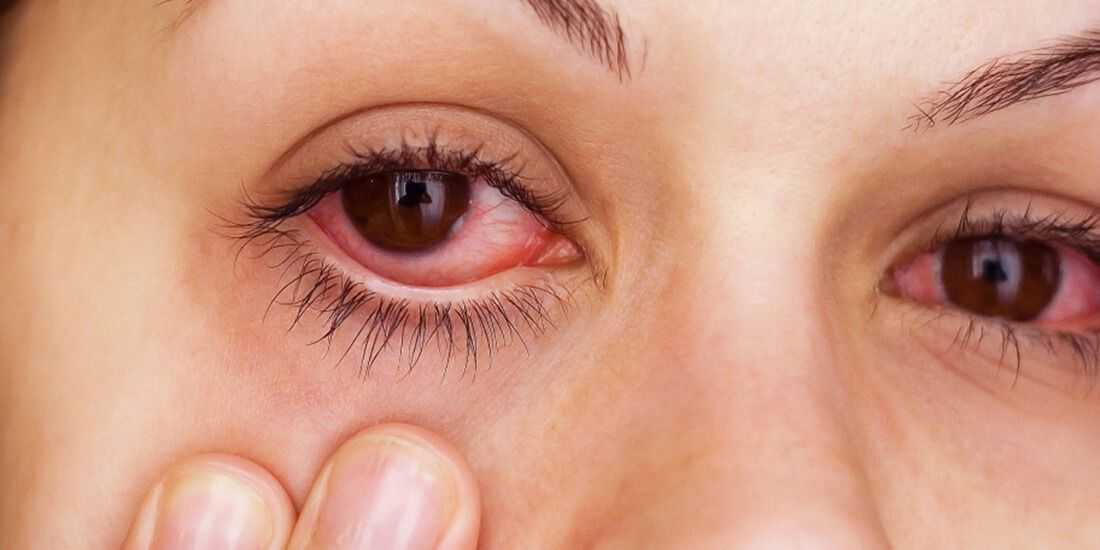 Что такое ретинопатия