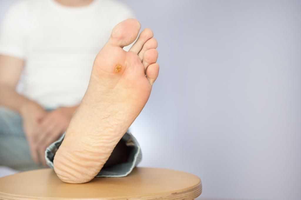 Почему плохо заживают раны при диабете