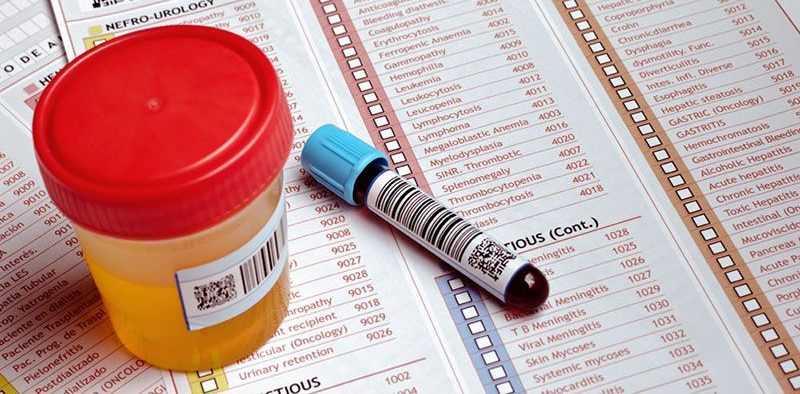 Повышенная глюкоза в крови классификация по мкб 10