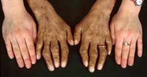 Гемохроматоз - бронзовый диабет
