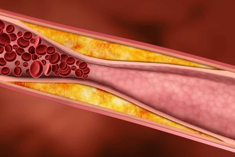 Применение при сахарном диабете 2 типа
