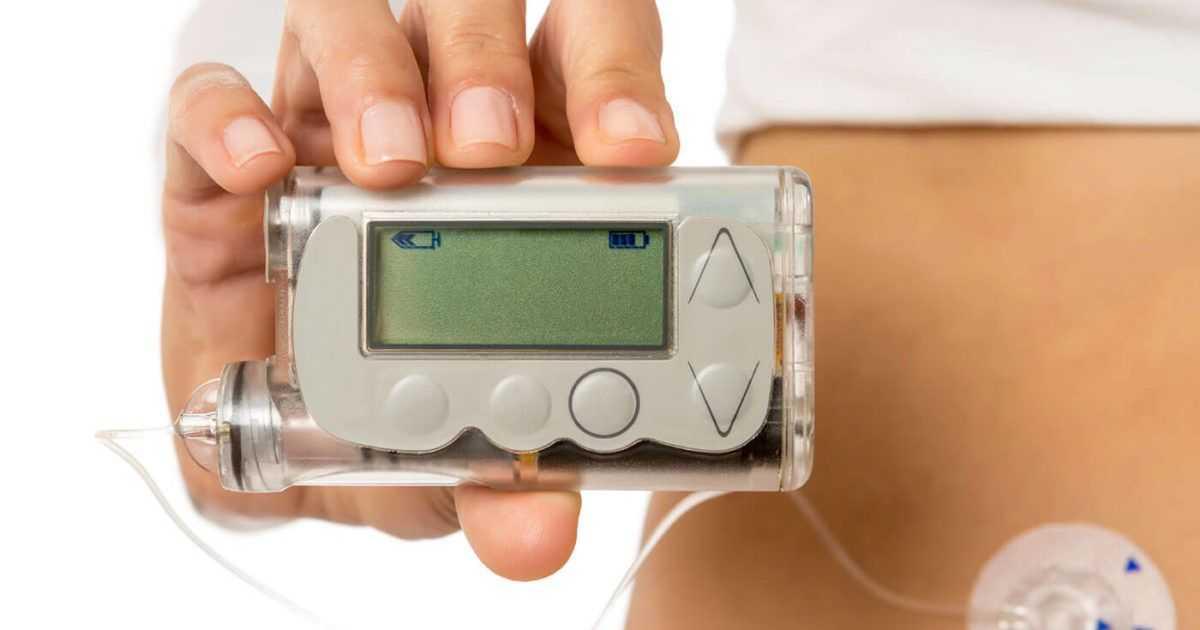 Отзывы о помпе при сахарном диабете