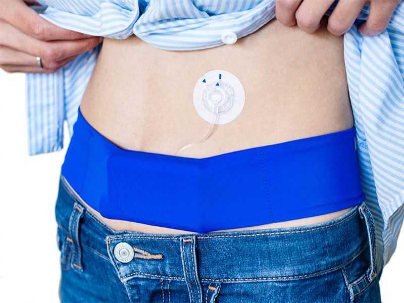 Что такое инсулиновая помпа