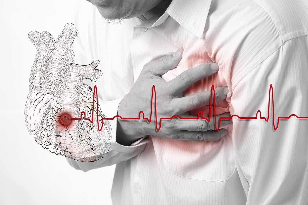 инсульт и инфаркт