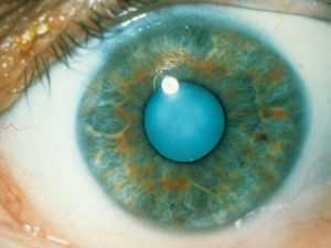 Лечение катаракты при сахарном диабете