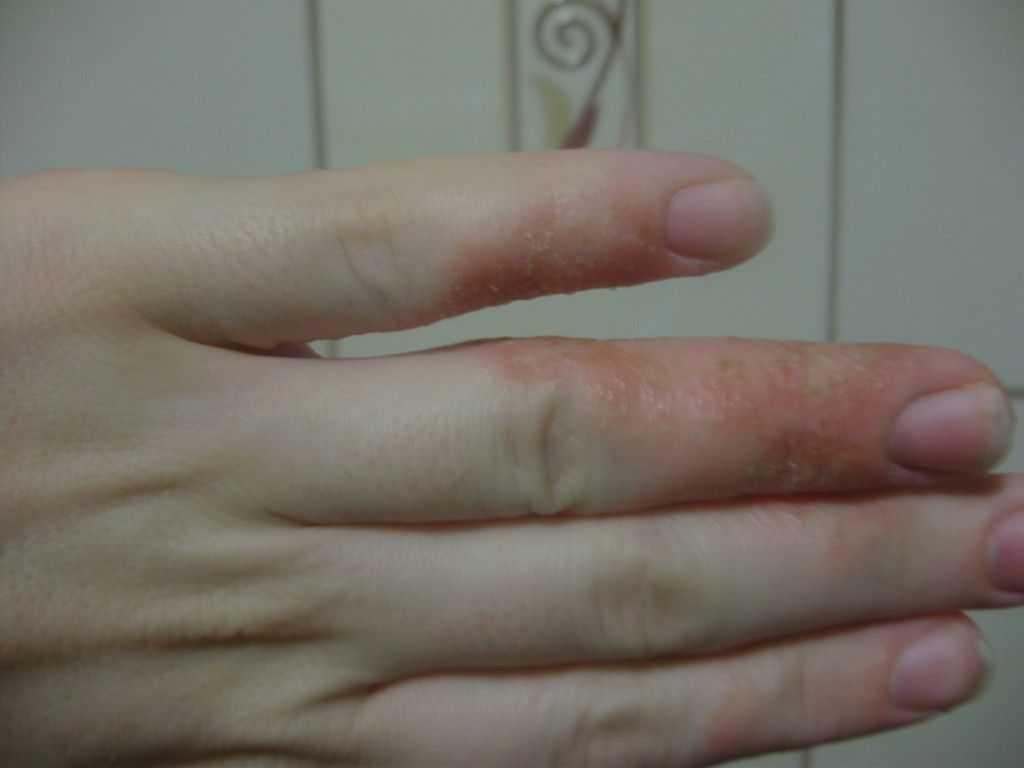 Кожные инфекции и кандидозы
