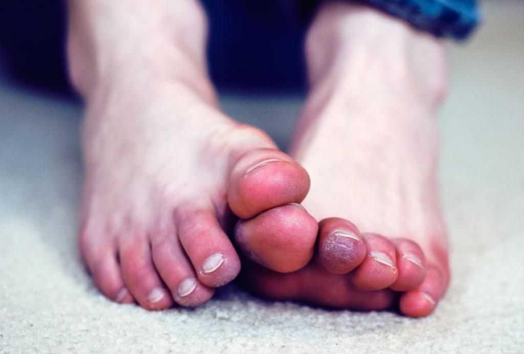 Причины потемнения ног и ногтей