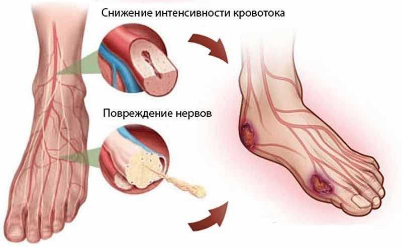 осложнения диабета
