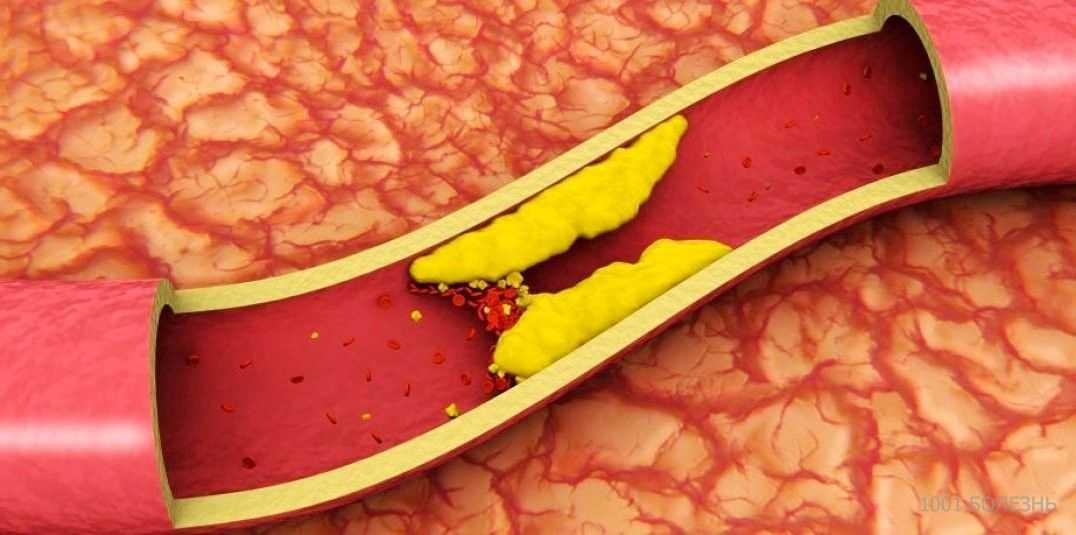 Чем опасно повышение холестерина в крови