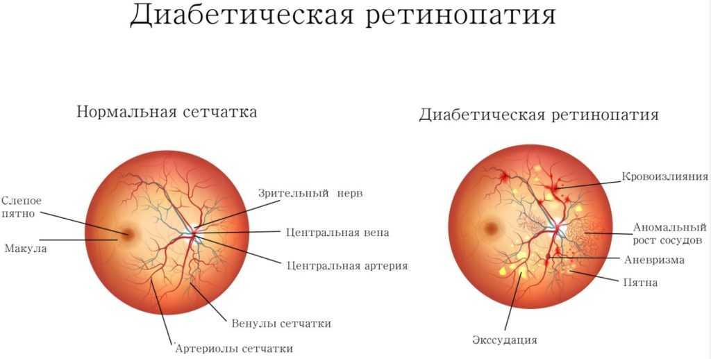 ретинопатия